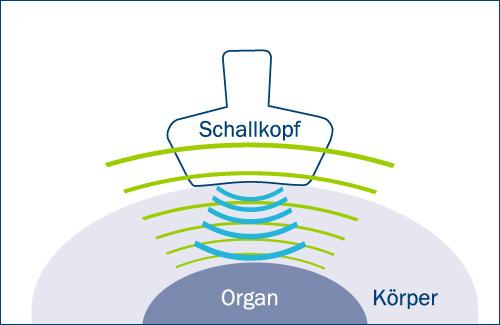 Funktionsweise des Ultraschalls